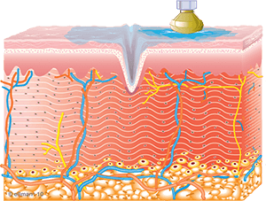 Collagen Synthesis Begins